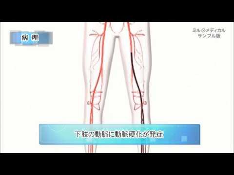 【閉塞性動脈硬化症】の原因・治療法